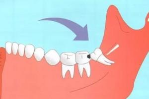长了智齿一定要拔吗关键看这几点听听牙科医生怎么说
